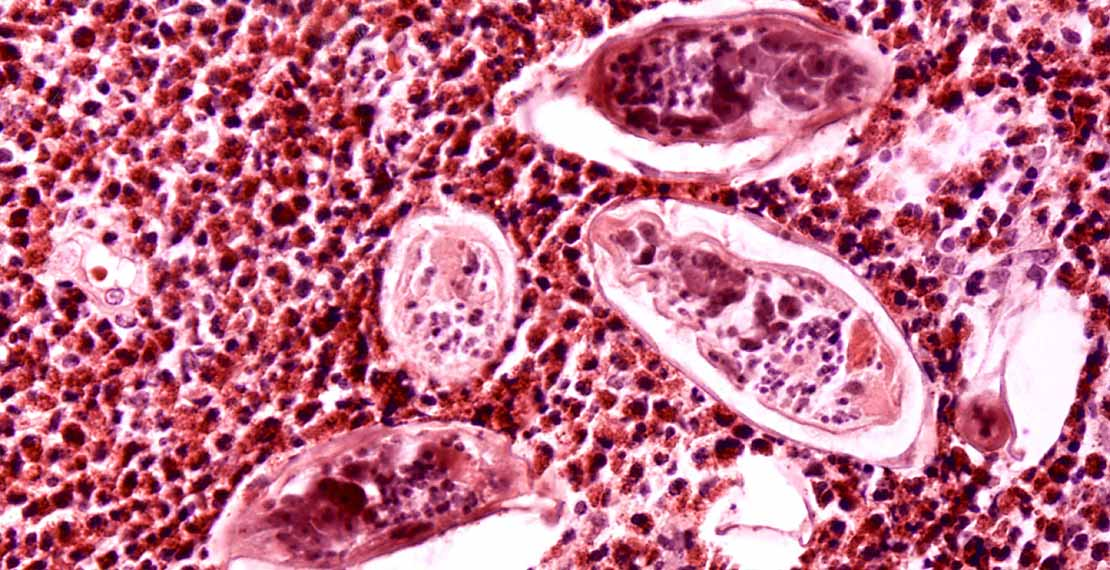 Schistosoma parasite eggs in human bladder tissue (c) Wikimedia Commons