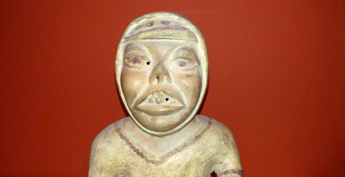 Replica of a pre-Incaic pottery representing a patient with signs of muco-cutaneous leishmaniasis'