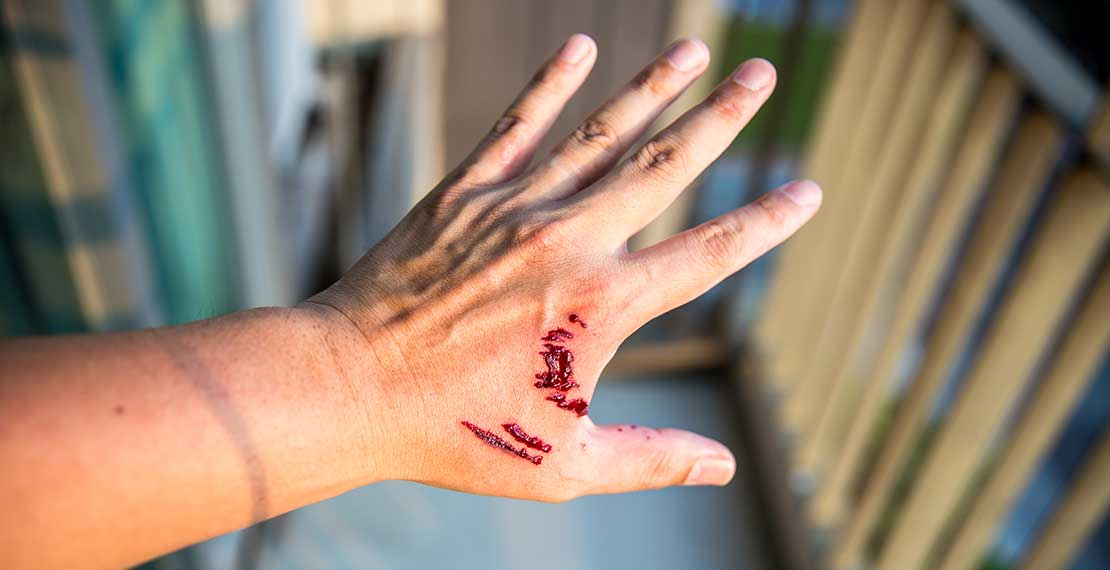 Hand with bite marks